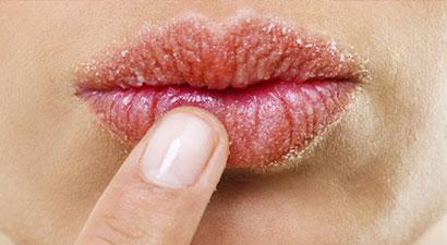 SOS labios agrietados